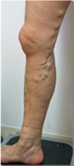 下肢静脈瘤 症状例